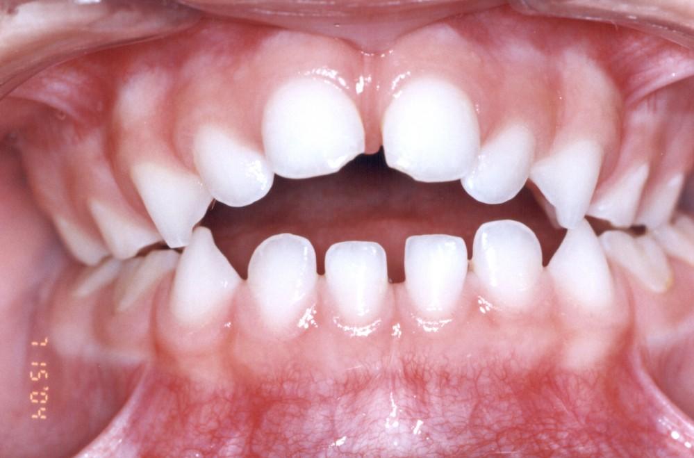Odonto Becker - Cirurgias - Est U00e9tica - Ortodontia